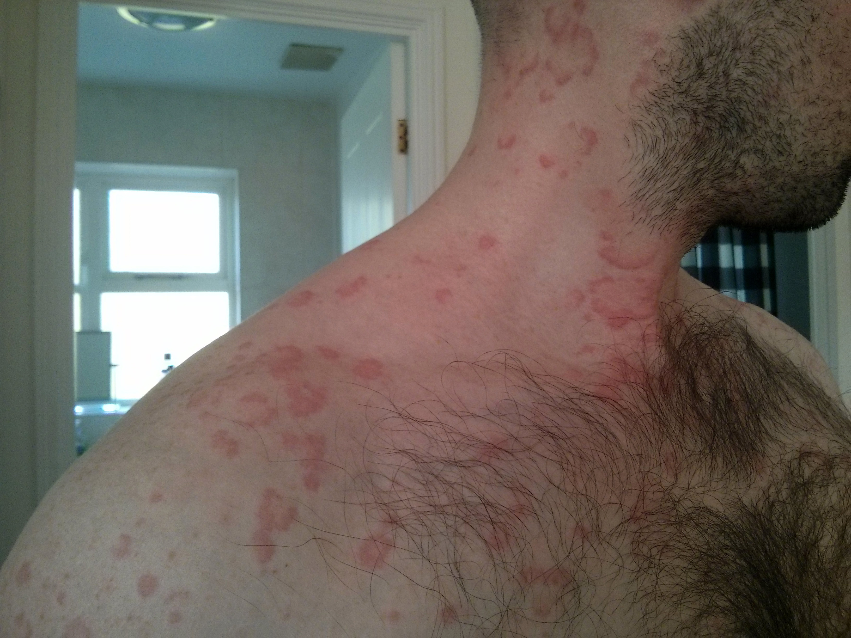 Manifest Stress: Hives & Shingles